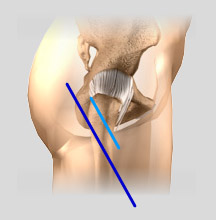 Minimally_Invasive_Knee_Replacement_Incisions